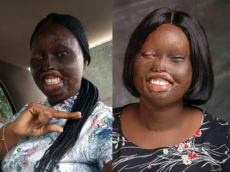 Woman Was Badly Disfigured By Acid Burns, But God Turned Things Around