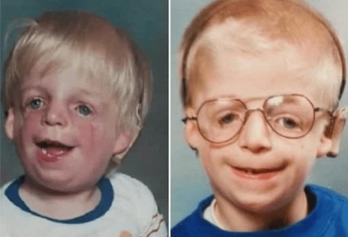 deformed face kid - HD1560×1062