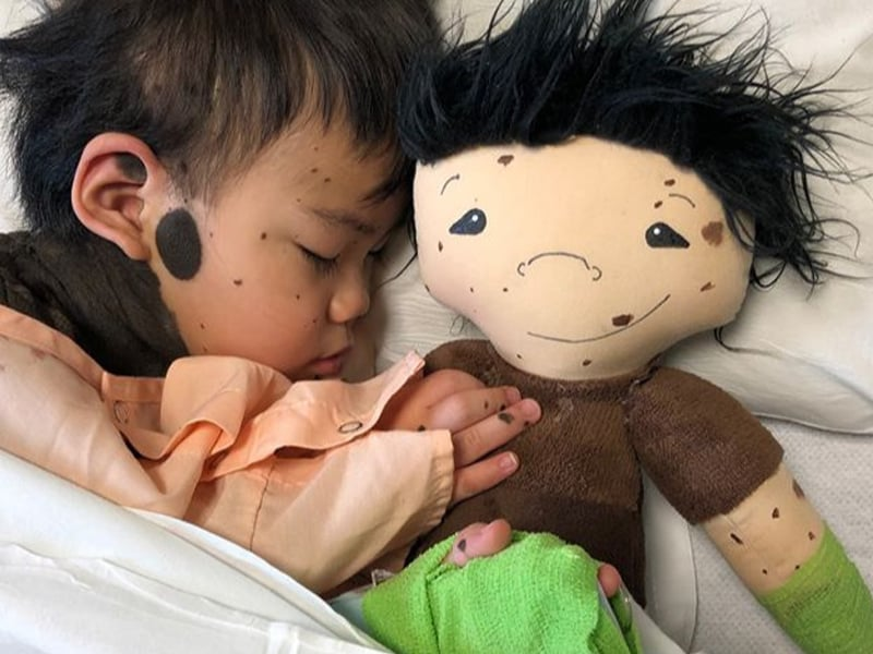 Social Worker Creates Personalized Dolls For Children Who Have Disabilities