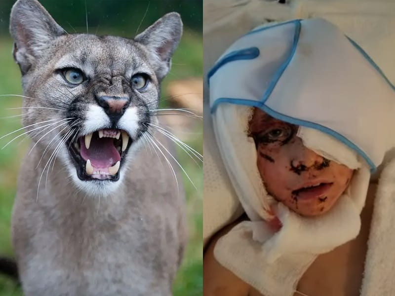 Bare-Handed 8-Year-Old Boy Fights Mountain Lion