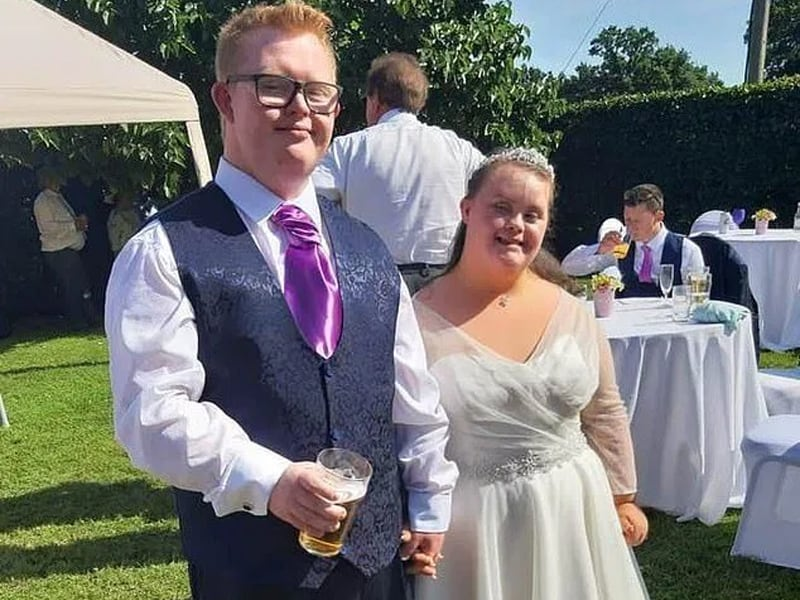 Couple With Down Syndrome Gets Married After Overcoming The Odds