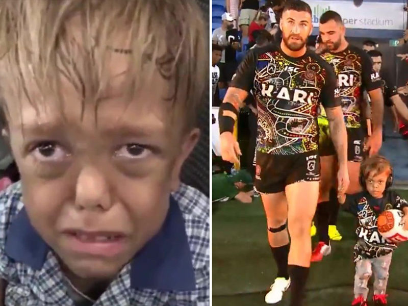 Bullied Boy With Dwarfism, Quaden Bayles, Flooded With Support After Posting A Disturbing Video