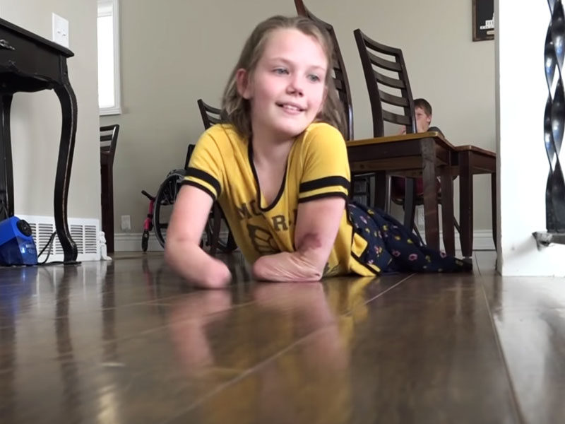 9-Year-Old Girl Who Lost Limbs To Car Accident Becomes A Miracle