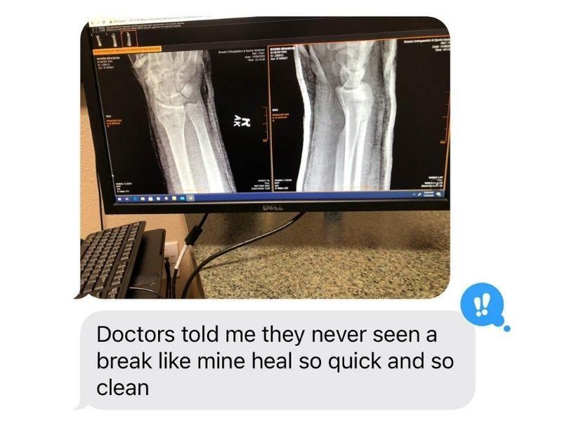 "Broken Arm Heals After Prayer: ""It's Like You Never Broke It"""