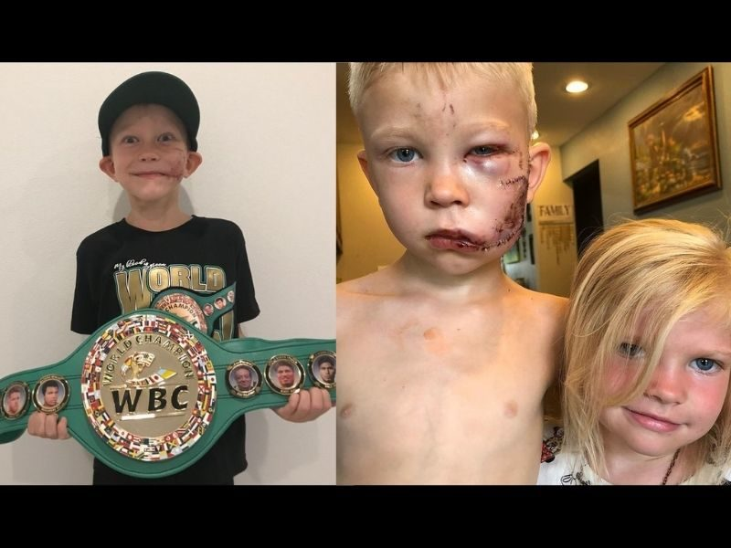 6-Year-Old Boy Who Saved Sister From Dog Attack Receives WBC 'Honorary Champion' Belt