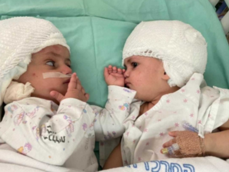 Israeli Doctors Successfully Separate Conjoined Twins In Historic Operation